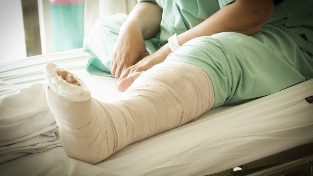 Patient sitting on hospital bed with broken leg